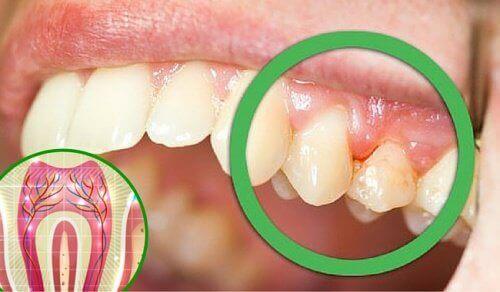 5 grunner til hvorfor du kan oppleve tannsmerter