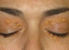 1-kuler-over-øyelokk-Xantelasma