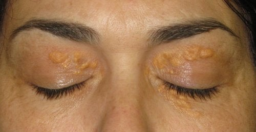 Xantelasma: Hvite flekker rundt øynene