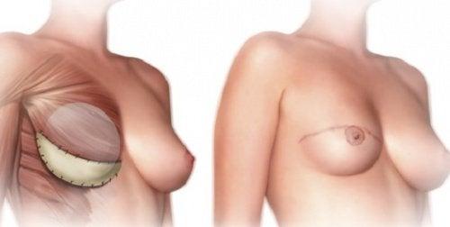 Hva bør du vite før en mastektomi?