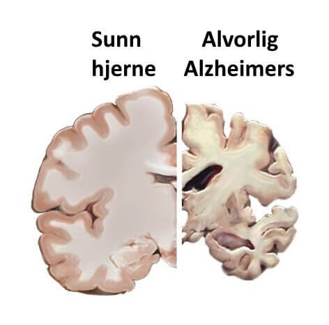 Tidlig diagnostisering av Alzheimers gjennom tale