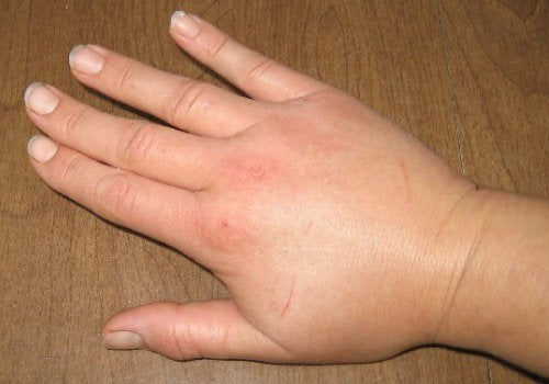 4-hoven-hånd