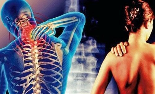 Cervikobrakialt syndrom: smerte fra nakken til armene