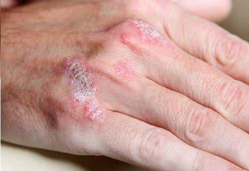 5 fakta om autoimmune sykdommer
