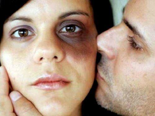 mishandlet kvinne
