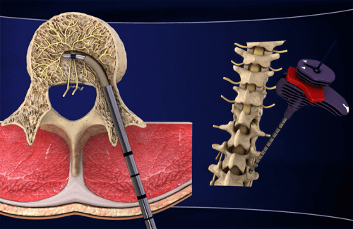 Korsryggsmerter: oppdag den nye behandlingen