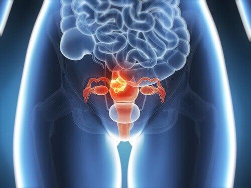 6 symptomer på livmorhalskreft du bør vite om