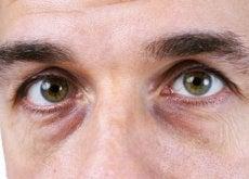 mørke ringer under øynene