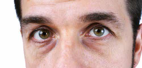 4 naturlige løsninger for mørke ringer under øynene
