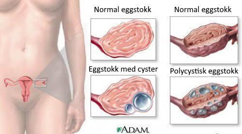 9 fakta om cyster på eggstokkene som enhver kvinne bør vite om