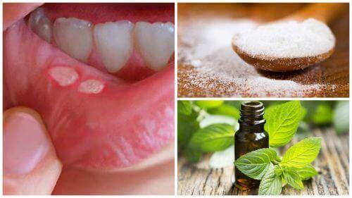 7 hjemmebehandlinger for å bli kvitt munnsår raskere