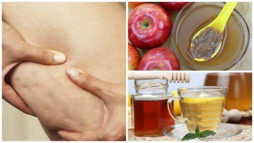 Bekjempe cellulitter med honning og eplecidereddik