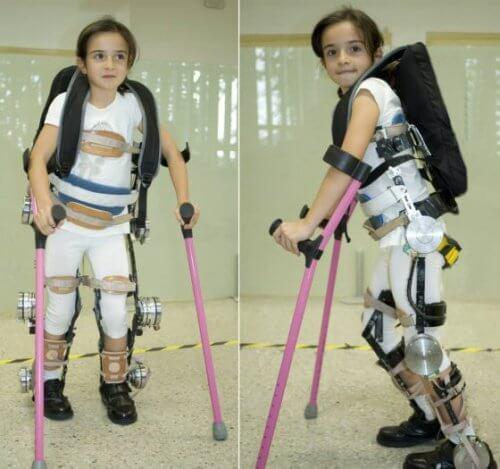 Jente lærer å gå med eksoskjelett