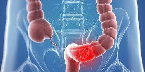 9 naturlige remedier som kan bidra til å bekjempe kolorektal kreft
