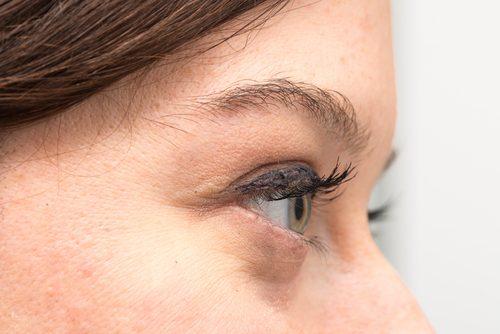 Hvorfor har du poser under øynene dine og hvordan behandler du dem naturlig?