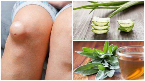 De 5 beste behandlingene for å redusere hevelse i knær