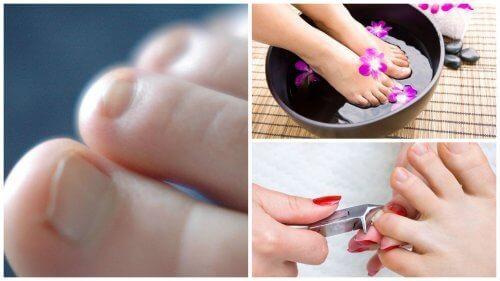 7 ting du trenger å vite om neglesopp på tåneglene