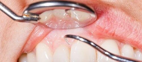 14 grunner til at tannkjøttet blør når du pusser tennene