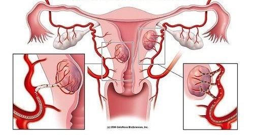 7 varseltegn på fibromer