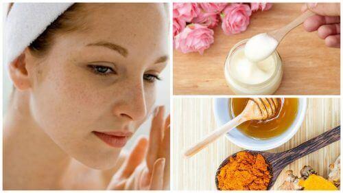 5 kremer som reduserer pigmentflekker i ansiktet