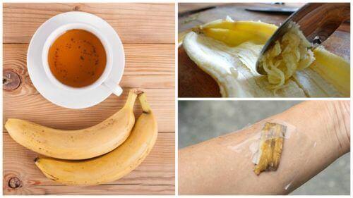 5 måter å bruke bananskall på