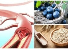 matvarer som er bra for arteriene dine