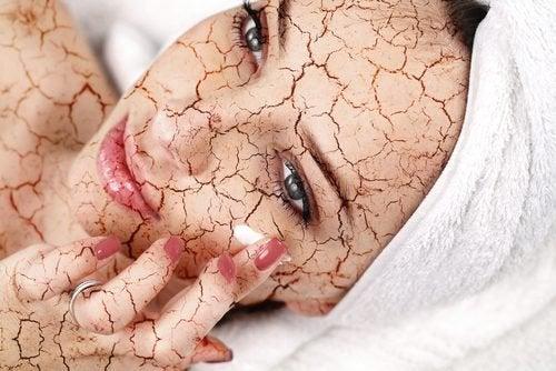Slik reduserer du tørr hud i ansiktet