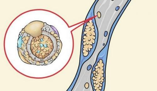 hvordan senke kolesterol