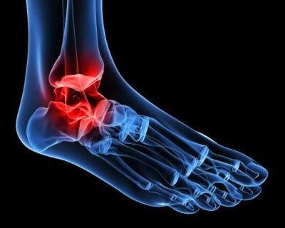 Artrose i anklene