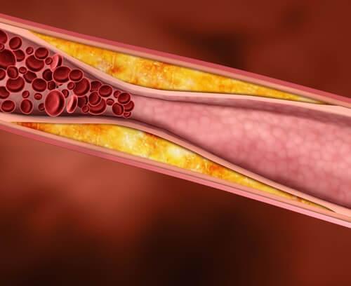 hoyt kolesterol
