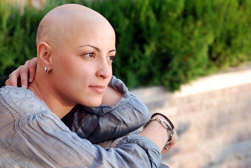 Kvinne med bivirkninger på grunn av bruk av kjemoterapi