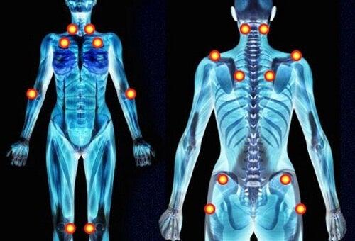 smertefolelser i kroppen
