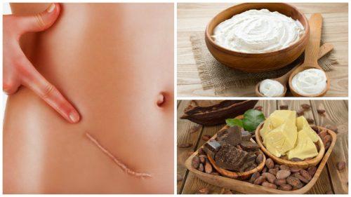 De 7 beste naturlige behandlingene for å redusere arr