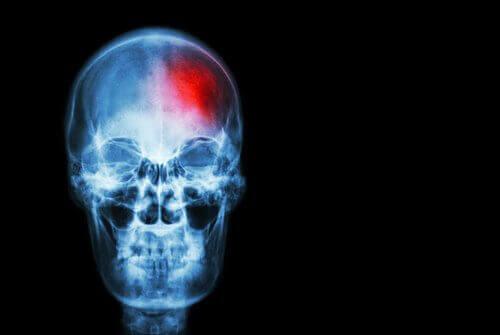 Kan du forhindre hjerneslag?
