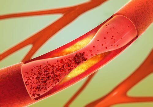 Blokkerte arterier