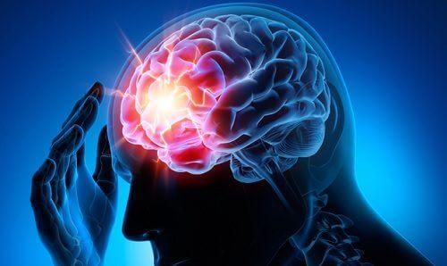 7 tips for å forhindre en aneurisme