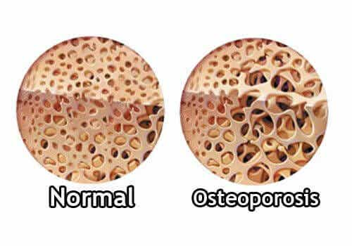 Hvordan kontrollere osteoporose i overgangsalderen