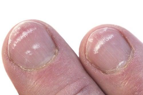 Hvorfor får man hvite flekker på neglene?