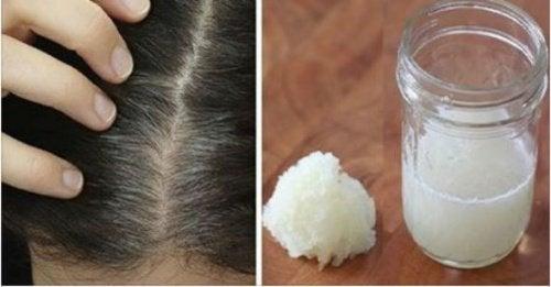 Behandling med løk og honning for å forhindre hårtap