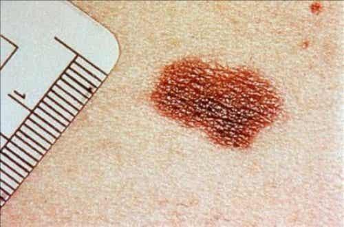 Tegn på hudkreft du ikke bør ignorere