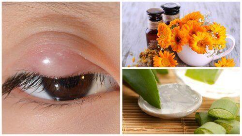 Lindre sti på øyet med disse 7 naturlige behandlingene
