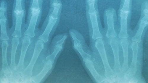 Røntgen av hender