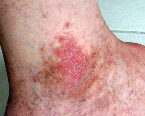 symptomer på hudkreft du ikke bør ignorere