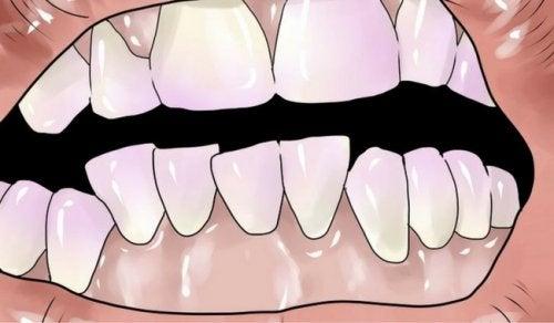 Bli kvitt plakk på tennene på en naturlig måte