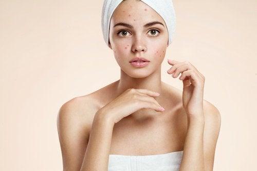 Få et sunt, rent og aknefritt ansikt