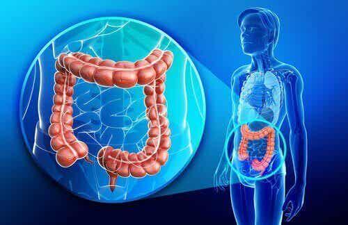 Crohns sykdom: Hva er det og hvordan behandles det?