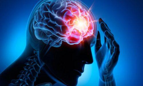 Fire vanlige cerebrovaskulære sykdommer