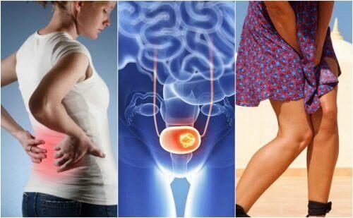 7 tegn på blærekreft å være obs på