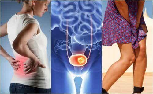 Tegn på blærekreft du bør være obs på