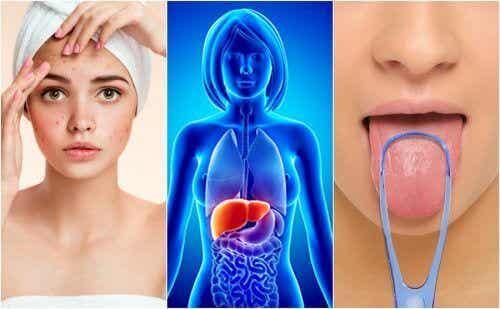 7 tegn på at leveren er overfylt med giftstoffer